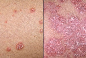 Psoriasis and How to Beat It