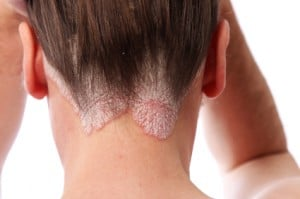 The Hidden True Cause of Scalp Psoriasis